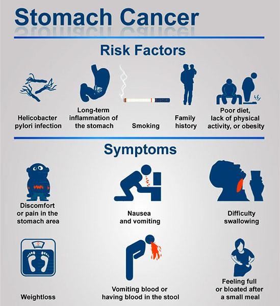 6 Warning Signs of Stomach Cancer