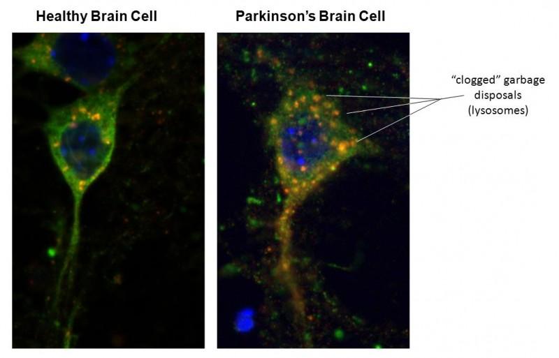 Could The Appendix Trigger Parkinson's?