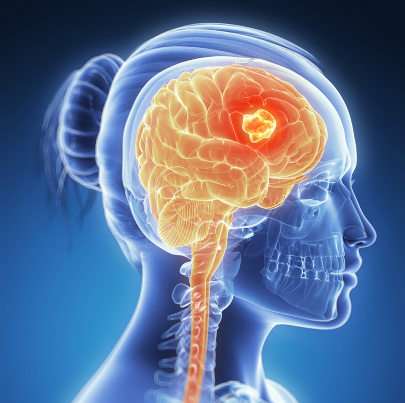 Does Brain Size Predict Brain Cancer Risk?