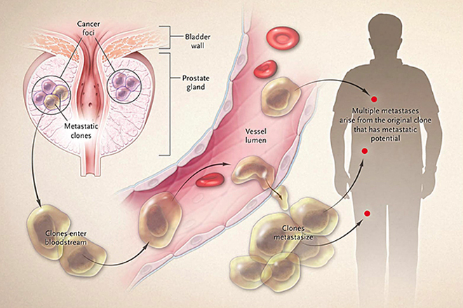 Metastatic Prostate Cancer: What You Need To Know