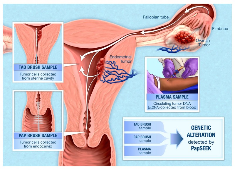 New Blood Test Can Detect Ovarian Cancer In Its Early Stages