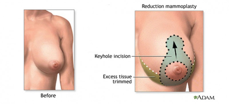 The Long-Term Outcomes Of Breast Implants Studied