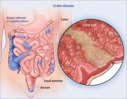 Are Probiotics Good or Bad for Crohn's Disease?