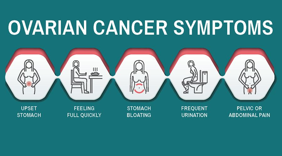 5 Early Warning Signs Of Ovarian Cancer Women Should Never Ignore Health Katalay Net