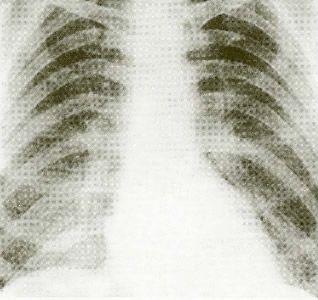 2007 TUS Nisan Ayı Tıp Fakültesi Mezunları İçin Klinik Tıp Bilimleri Testi 1 Soru 20